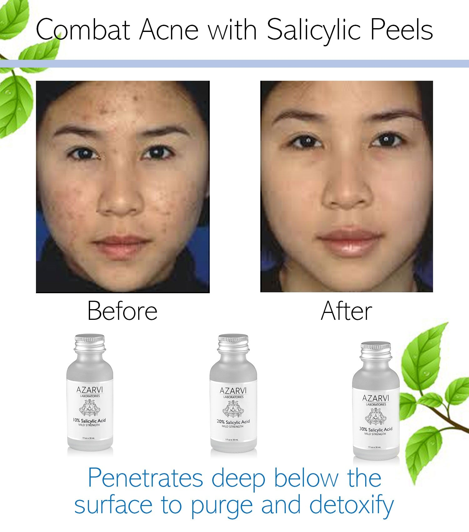 30% Salicylic Acid Chemical Peel with Neutralizer - Azarvi