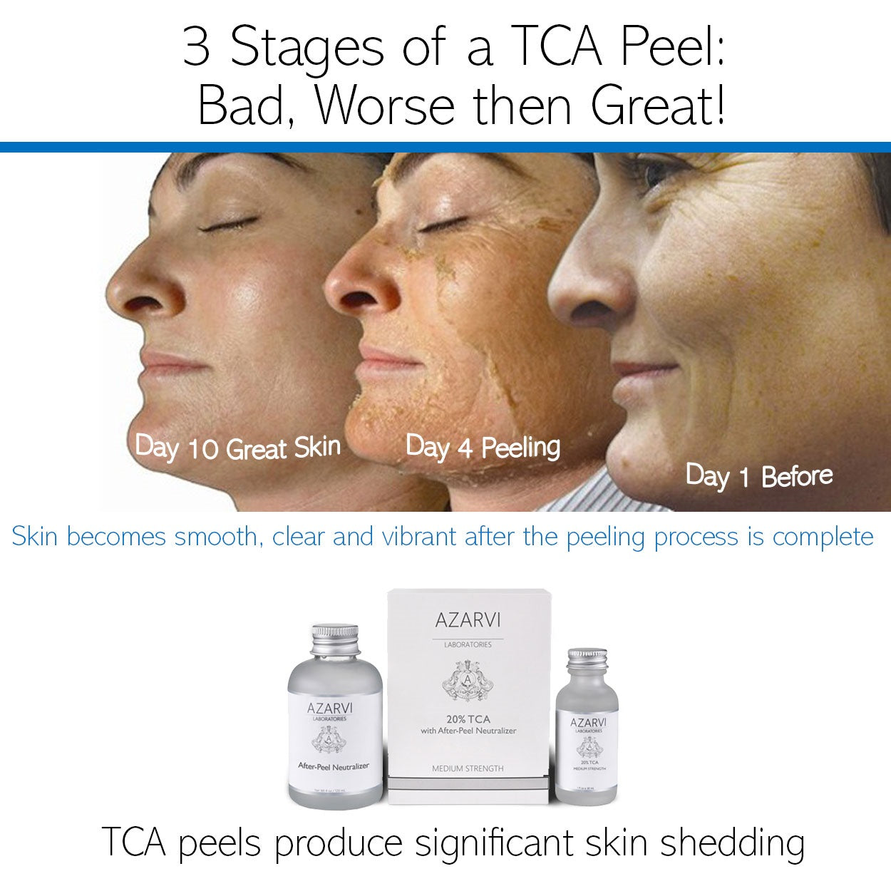 ... TCA Peeling Stages – Before and After Effects of TCA Chemical Face Peel  ...
