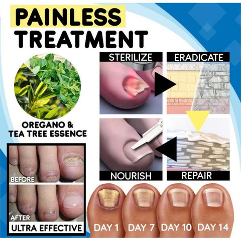 Painless Remedy For Nail Fungus Anti-fungal Nail Treatment Set