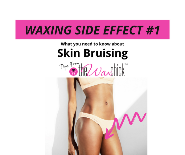 Waxing Side Effect #1 - Skin Bruising