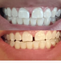 Charcoal Teeth Whitening Powder Toothpaste