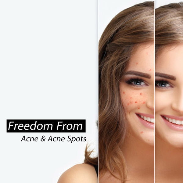 The Very Best Acne Tips You Must Be Know
