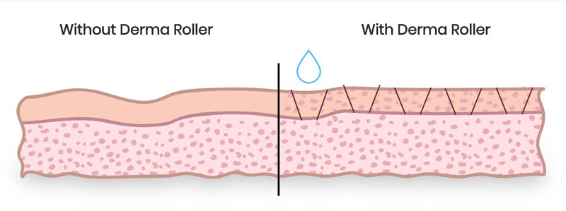 how does the derma roller works