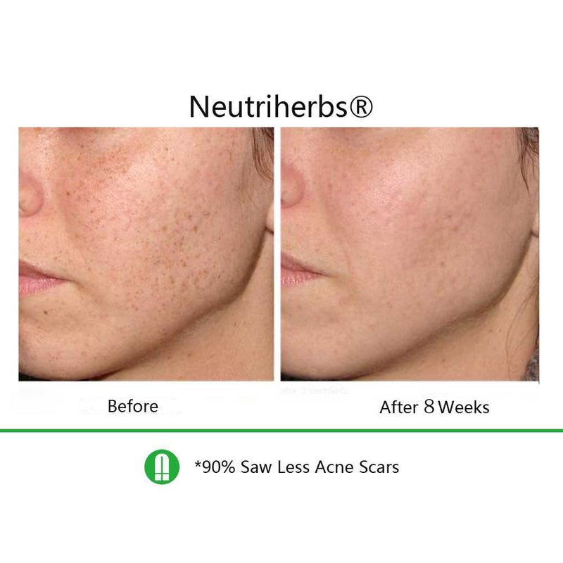 Vitamin-C-Serum-sunspots-before-and-after