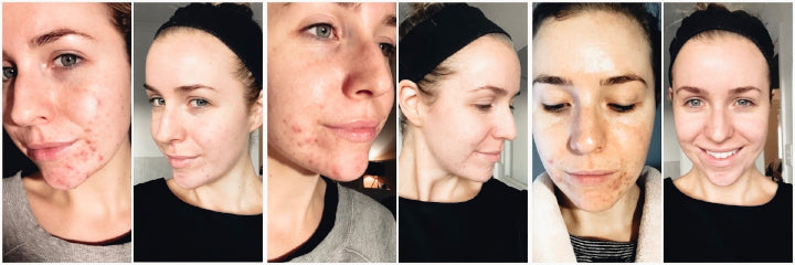 Kimdubs_ skin purging results using Oasis Black