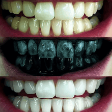 Before and after using the charcoal teeth whitener.