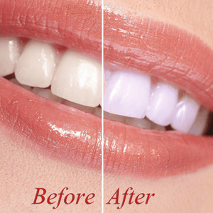 Before and after using dental whitening kit smile.