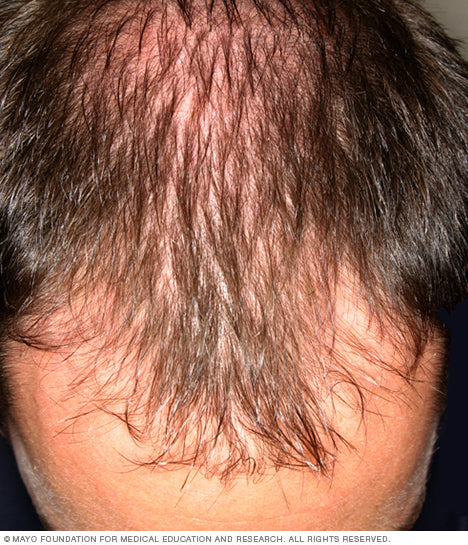 Hair Loss Facts From the Mayo Clinic