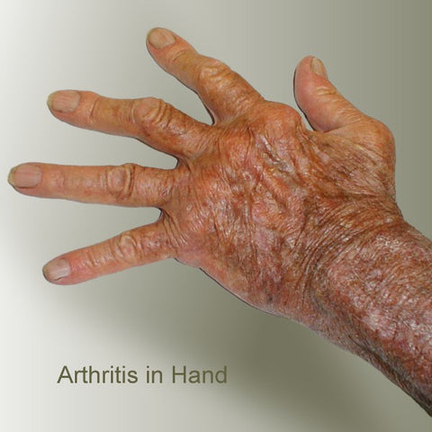 Sample of Severe Arthritic Fingers and hand