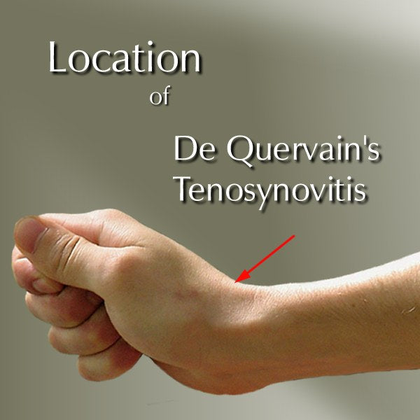 De Quervain\u0027s Syndrome. Pain Relief Base of Thumbs Far