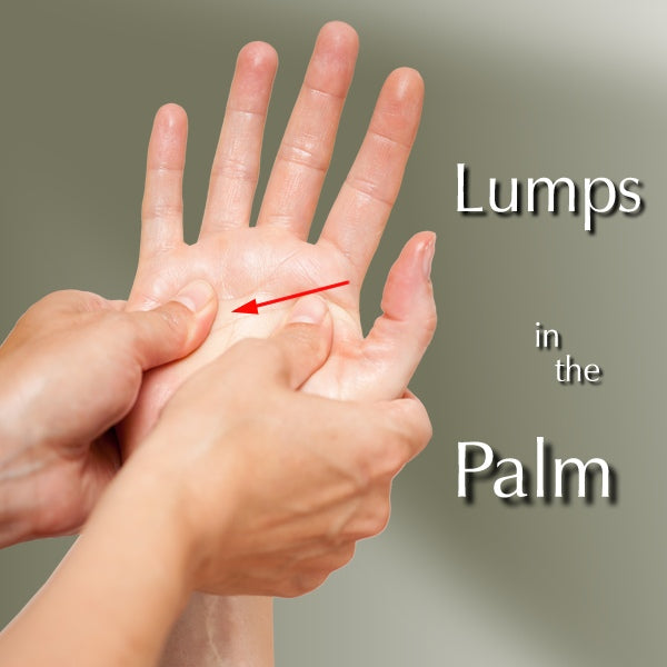 Lumps in the Palms of Your Hands