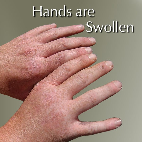 swollen hands far infrared gloves reduce swelling therapygloves com