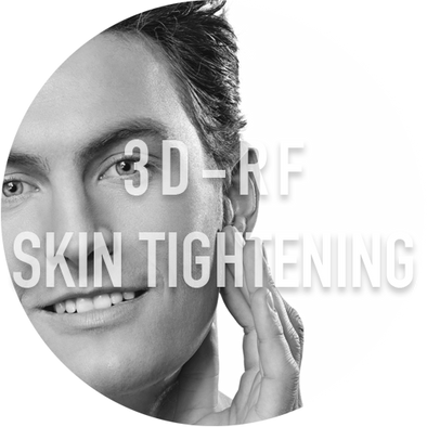 3D-RF Eye Skin Tightening - Pricing starting from-Meei Clinic
