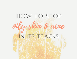 How to Stop Oily Skin & Acne in its Tracks