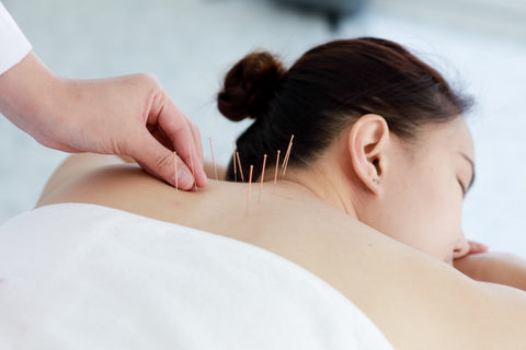 Go for Acupuncture Therapy