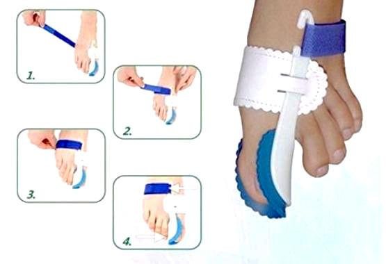 Real Orthopedic Bunion Corrector Splints -Non- Surgical Treatment & Relief, Adjustable Pair, Wear at Night