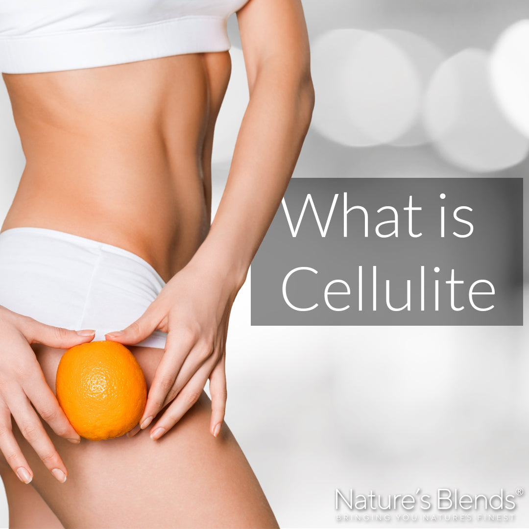 What is cellulite and its causes