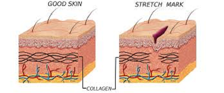 stretch marks and argan oil