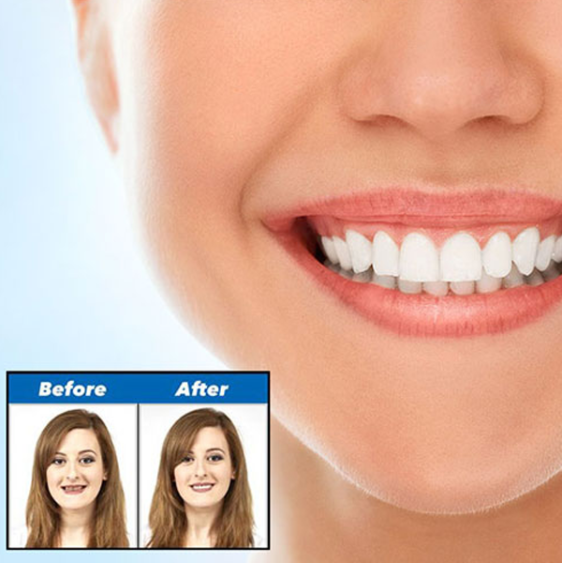 Comfort Fit Smile Veneers