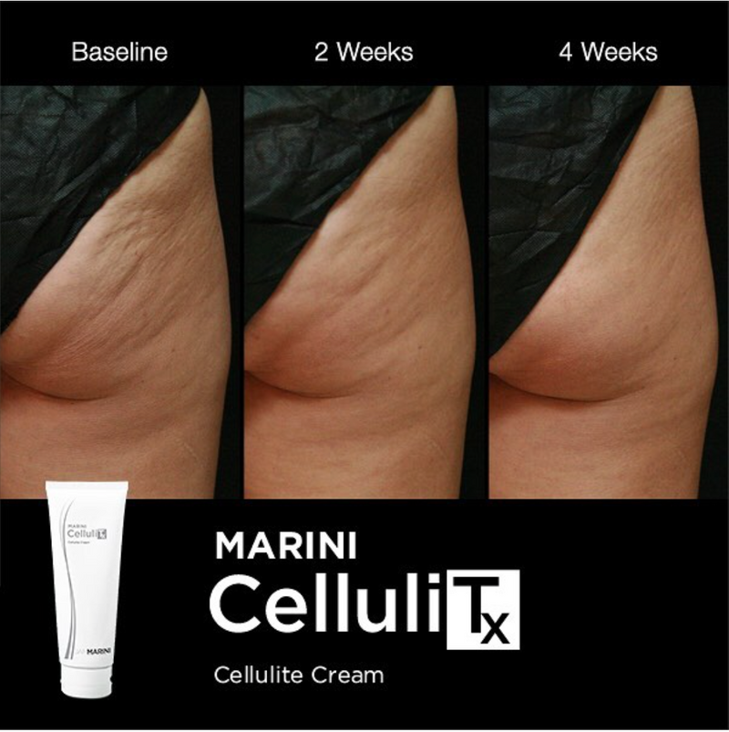 Banish Cellulite Forever with Marini CelluliTx