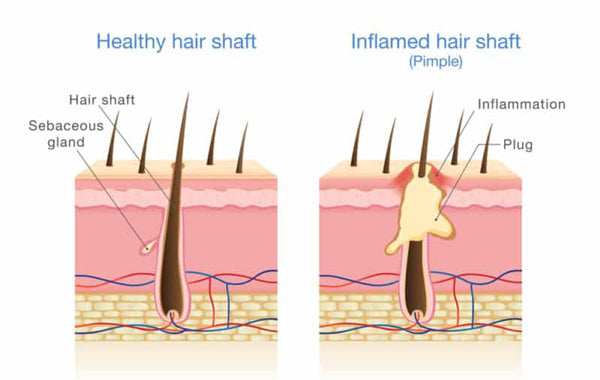 Infected Hair Follicle