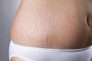 Keeping My Stripes Private| Decreasing Appearance of Stretch Marks