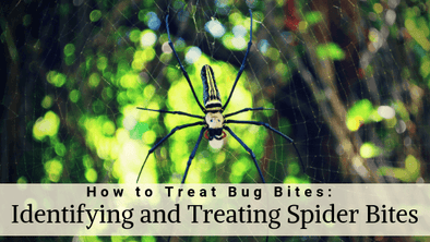 How to Treat Bug Bites: Identifying and Treating Spider Bites
