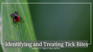 How To Treat Bug Bites: Identifying and Treating Tick Bites