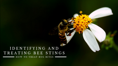 How To Treat Bug Bites: Identifying and Treating Bee Stings