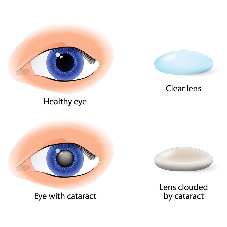 Healthy eye versus eye with cataract