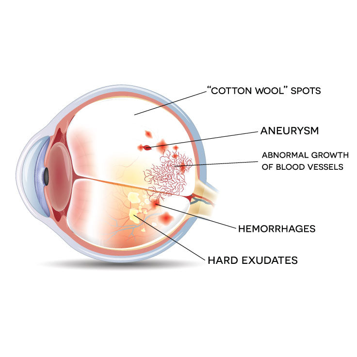 Ocular Complications of Diabetes