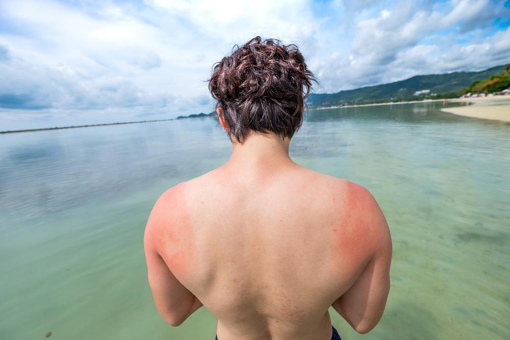 4 Natural Remedies to Treat Sunburn