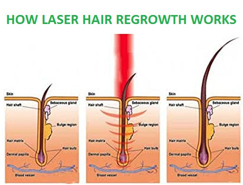 Hair Regrowth Laser Treatment Comb Goods To Share