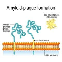 diagram of amyloid plaque formation as it relates to alzheimer's disease