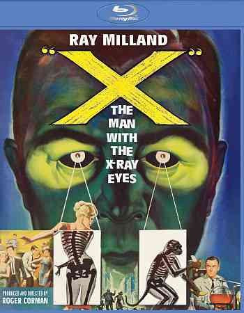 X:MAN WITH THE X RAY EYES