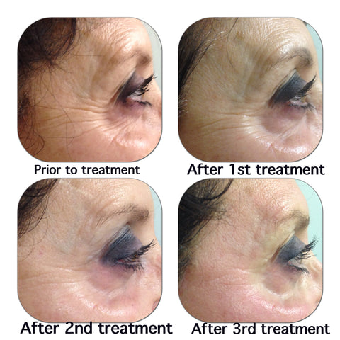 Hermes Microneedling Therapy for Wrinkles, Deep Lines, Fine Lines