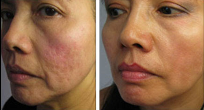 Hermes Microneedling Therapy for Acne Scars