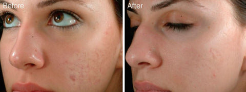 Hermes Microneedling Therapy Dermapen to reduce the signs of Acne Scars.