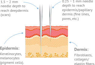Hermes Microneedling Therapy Derma Pen creates micronchannels into the epidermis and dermis