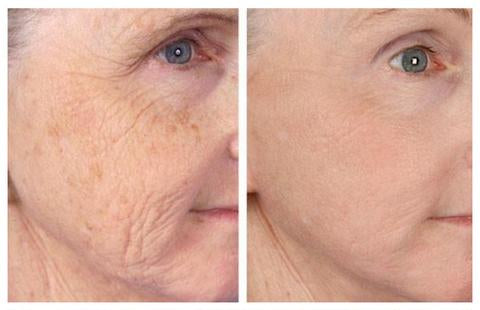 Hermes Microneedling Therapy Dermapen to reduce fine lines, deep lines, and wrinkles.