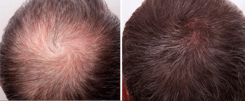 Hermes Microneedling Therapy for Thinning Hair and Hair Loss