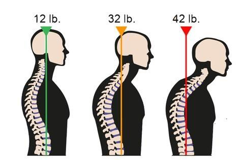 Forward Head Posture Neck Pain CerebralBody