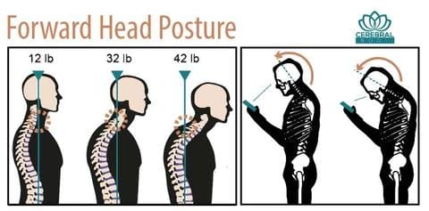 importance of good posture cell phone neck pain cerebralbody