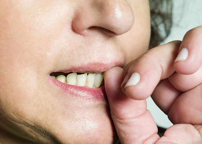 Are You a Nail Biter? 7 Ways to Stop this Dangerous Habit