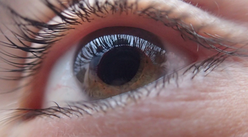 The Ways in Which CBD Affects Glaucoma