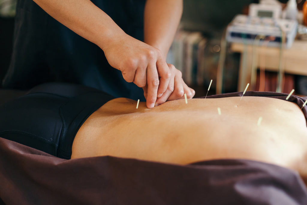 acupuncture and the menopause