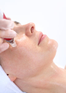 SKIN NEEDLING | COLLAGEN THERAPY