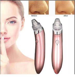 USB Rechargeable Vacuum Pore Blackhead Remover