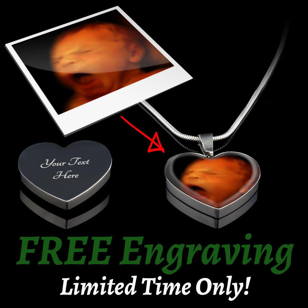 Capture Your Baby Precious Moments (Personalised Photo Upload - Surgical Steel Heart Pendant)