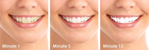 Teeth Whitening White Bright Kit